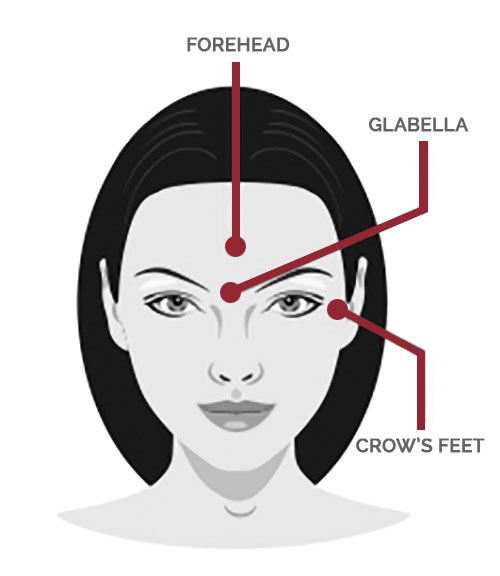Nurture Beauty Botox Areas